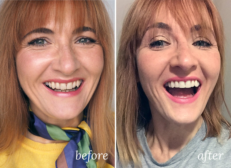Before and after teeth filing and whitening (Philips Zoom process review) | Not Dressed As Lamb