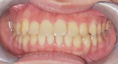 三重寶石牙醫不只醫牙還醫美 推薦自然美觀的時代天使隱形矯正 (11)