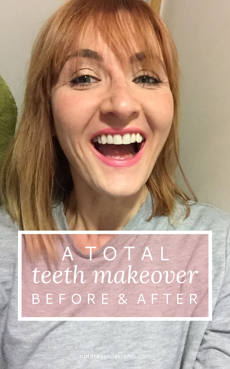 A total teeth makeover: The result of teeth whitening and reshaping (with before and after pictures)