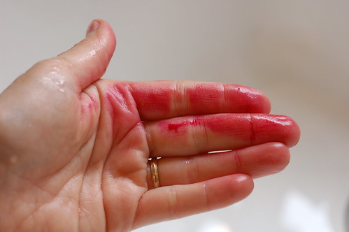 Beet Blood on my Hands by Eve Fox, Garden of Eating blog, copyright 2011 | by Eve Fox