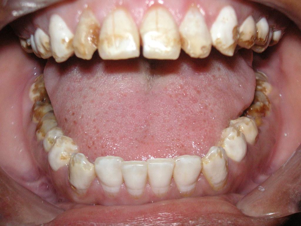 dental fluorosis E15 j clin exp dent 20091(1):e14-18 dental fluorosis: exposure, prevention and management.