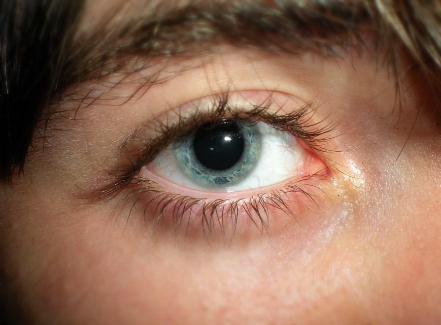 Mitch Correnblith's Eye