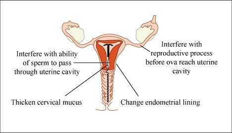 What you need to know about IUDs