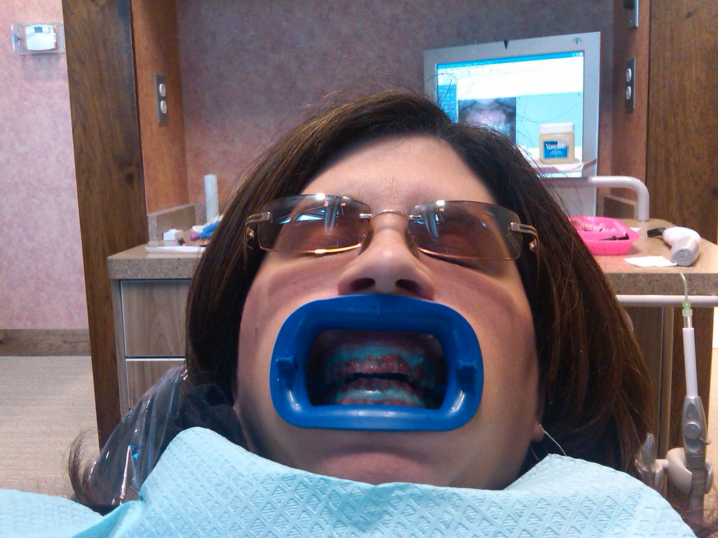 Teeth Whitening with Groupon