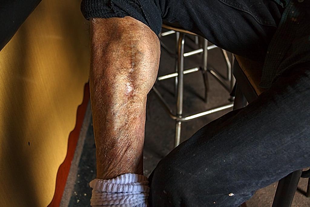 Mike's bullet scar--Italian Market