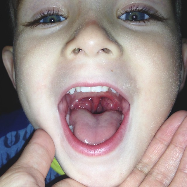 Ethan's Tonsils