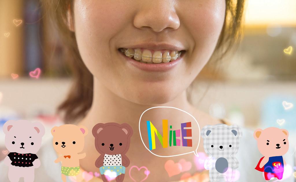 我在台南遠東牙醫矯正牙齒 沒想到牙齒矯正也矯正了我的人生! (8)_2