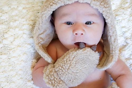 赤ちゃん 日焼け かゆみ