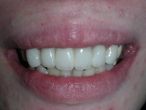 睽違十年我終於勇敢踏入台中豐美牙醫的大門 (11)