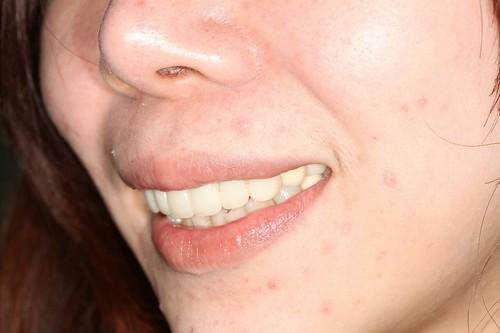睽違十年我終於勇敢踏入台中豐美牙醫的大門 (13)