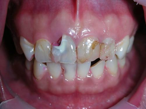 睽違十年我終於勇敢踏入台中豐美牙醫的大門 (9)