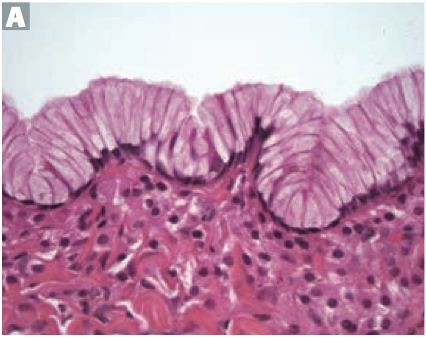 Epithelial Ovarian