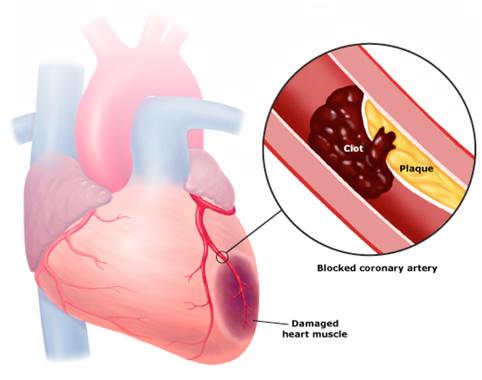 Cơ tim bị hoại tử do tắc nghẽn mạch vành