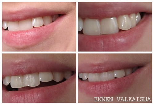 410_hampaat_ennen_kollaasi