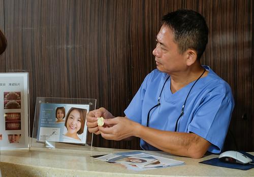 [推薦] 台南佳美牙醫陶瓷美白貼片拯救了天生牙齒黃的我 (11)